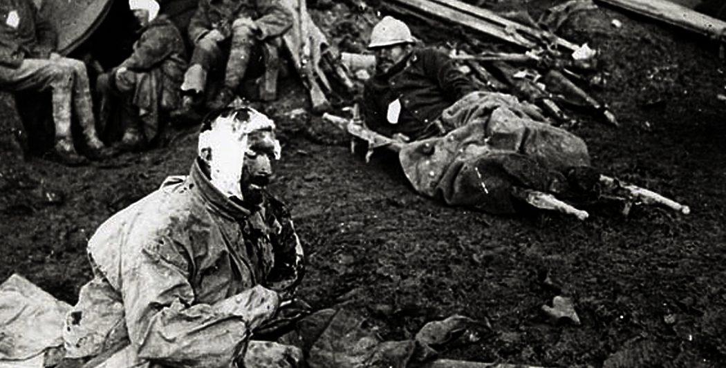 Bataille de Verdun   Blessés français   historyweb.fr bataille de verdun La bataille de Verdun bataille verdun premiere guerre mondiale site histoire historyweb 16